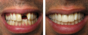 Cosmetic-Dentist-brooklyn-ny-1