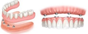 Denture-Care-Center-brooklyn-ny-1
