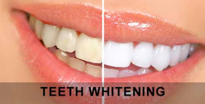 teeth-whitening-service-brooklyn-ny-2